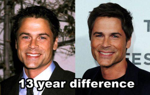 celebrita non invecchiano12
