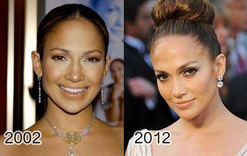 celebrita non invecchiano9