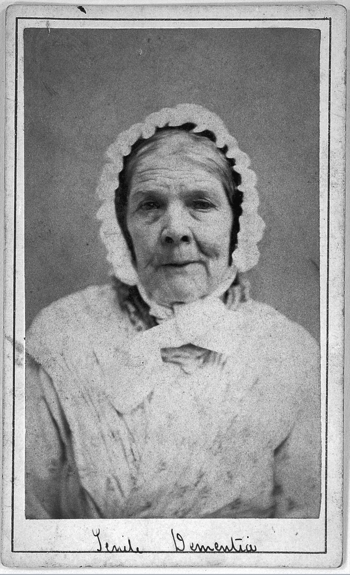 L0019062 'Senile dementia' patient at West Riding Lunatic Asylum
