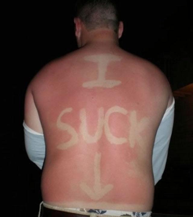 sunburnart8