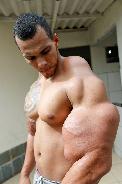 Muscle Injections Almost Cost This Man His Arms - Brazil