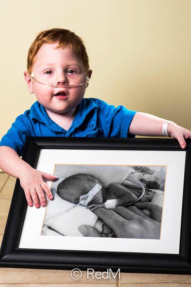 Charles, nato a 26 settimane