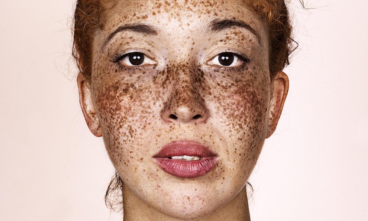 Il più efficace contro posti di pigmentary