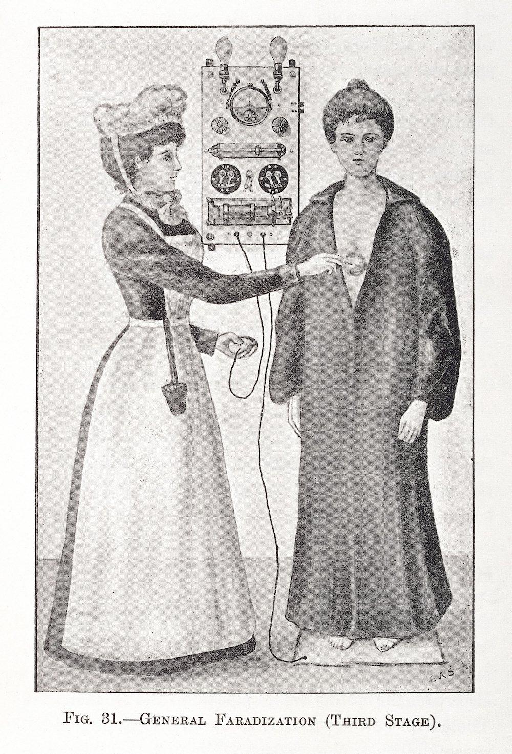 1900: il terzo stadio della General Faradization. Un'infermiera applica la corrente elettrica su una paziente tramite vibratore o elettrodi bipolari di Apostoli. – Electricity in Gynaecology, Richard J. Cowen