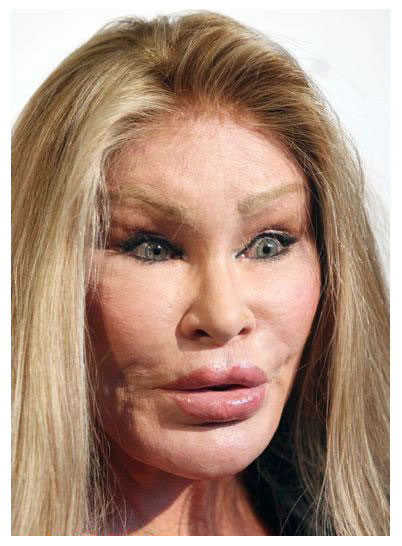 plastic-surgery-pictures-gone-bad-celebrityplasticsurgerygonewrong-gjkhFe