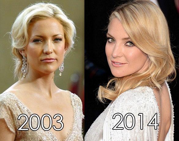 celebrita non invecchiano15