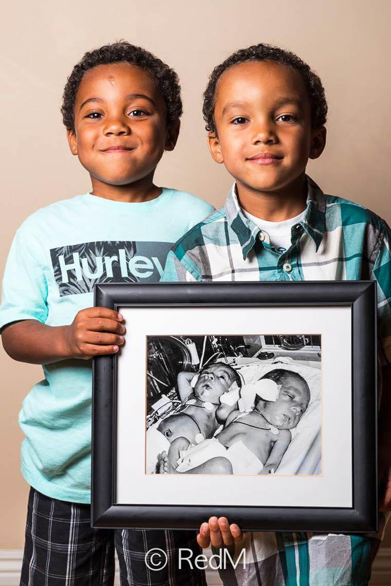 Noah e Nathan, nati a 32 settimane